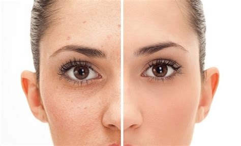 Flat Warts On The Face  Causes And Treatments To Remove