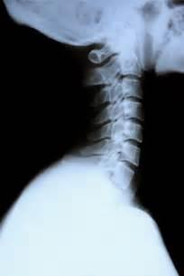Cervical Spine Neck Pictures