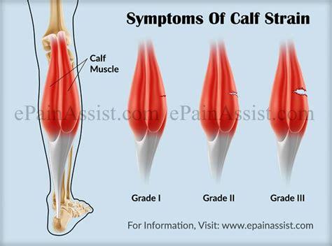 calf straintreatmentsymptomsrecoverycausesprognosis