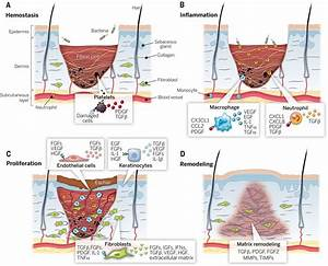 Advances In Skin Grafting And Treatment Of Cutaneous