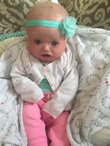 Harlequin Ichthyosis Causes Newborn U2019s Skin To Dry And Crack