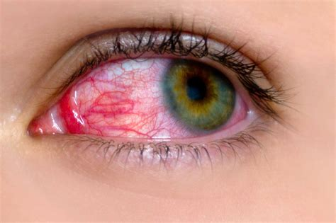 Image result for a picture of a person with red eye disease