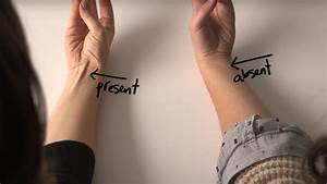 Do You Have A Vein On Your Wrist  This Is What It Is