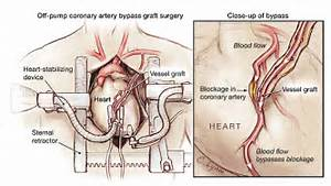 Coronary Artery Bypass Grafting - Cardiothoracic Surgery - JAMA - The ... Coronary Artery Bypass Graft