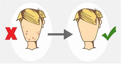 Acne Treatment Cartoon Before Pimples Skin Treatments