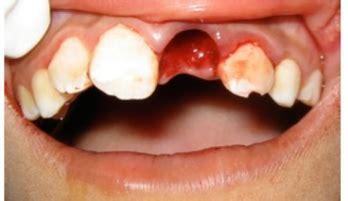 pediatric dental emergencies fms dental hospital