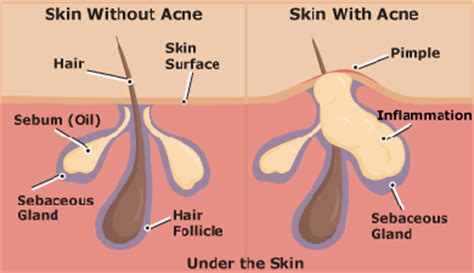 how to get rid of acne fast 10 natural home remedies