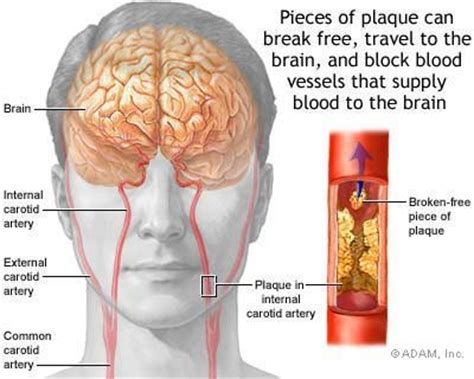 Shower Head Clogged by Hemorrhagic Stroke Symptoms Hemorrhagic Stroke Health