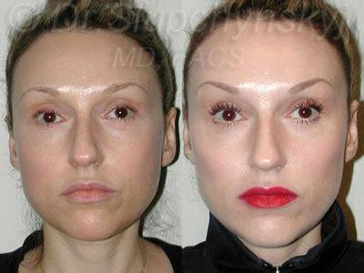 cheek augmentation  york cheek implants manhattan