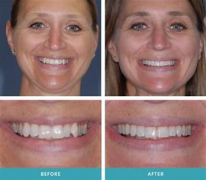 Invisalign smile results – Invisalign dentist Grand Rapids MI