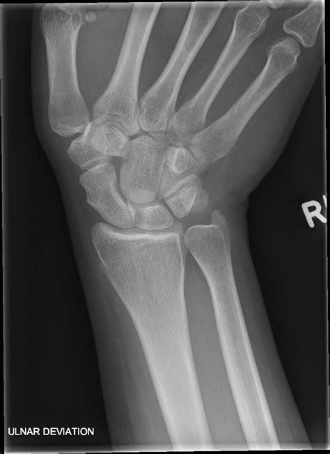 normal wrist image radiopaediaorg