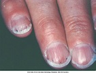 Splinter Haemorrhages   Rated Medicine