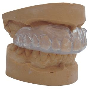 Athletic Mouthguards  Newmarket Family Dental Care