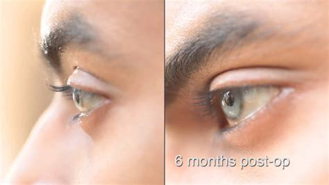 eye color changing surgery eye color change surgery 6 months post op brightocular