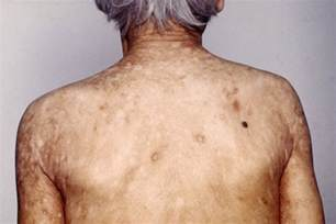 Iron Deficiency Anemia and Rash