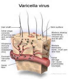 Varicella Zoster Virus - herpesfactorfiction  Chickenpox Chickenpox and Shingles