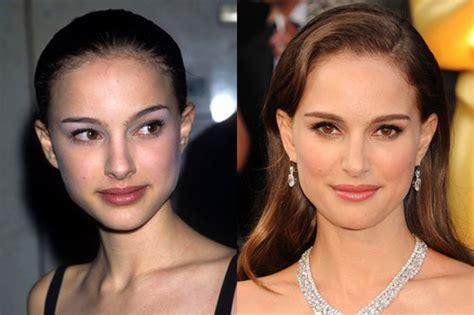 Natalie Portman Nose Job Plastic Surgery Before After