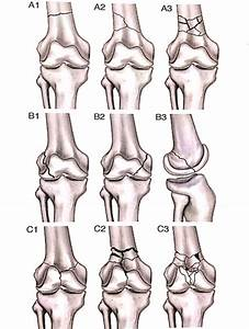 Distal Femoral Fractures: Complications and How to Avoid ...