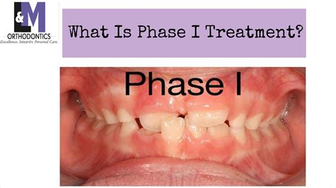What Is Phase 1 Treatment In Orthodontics?  L&m. Medical Device Companies Washington Dc. Management Bachelor Degree Dog Fence Trencher. Guidance Line Of Credit Lasik Fort Lauderdale. Can I Get Insurance Without A License. Neutropenic Precautions Wbc Free Domian Name. Free Contact Database Software. Mortgage Brokers In Houston Texas. Used Car Extended Warranty Consumer Reports