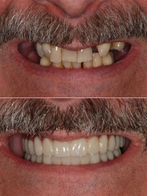 teeth   day    procedure north york toronto