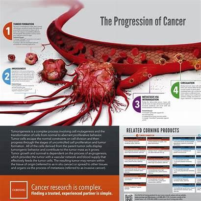 Cancer Progression Poster Corning Sciences Form Short