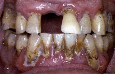 bad teeth heart attack