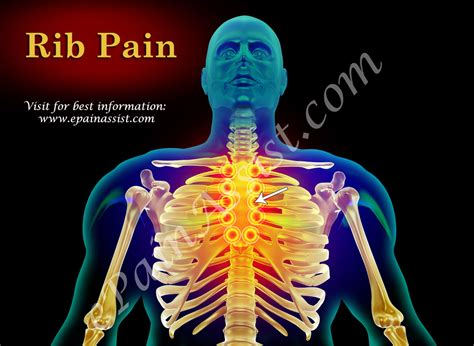 Rib Painclassificationtypespathophysiologycausessigns