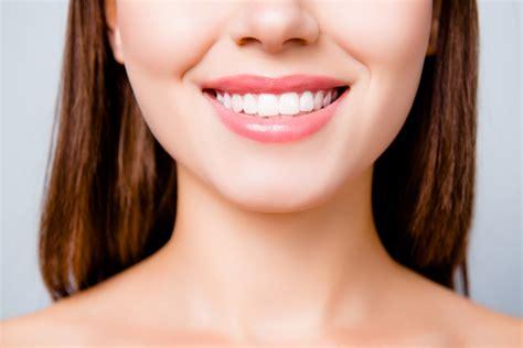 Smile Makeover Melbourne FL | Full Mouth Reconstruction