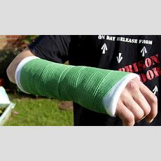 How Can You Break Wrist On Purpose?  New Health Guide