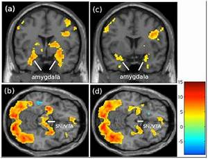 Patterns Of Brain Activation When Mothers View Their Own Child And Dog  An Fmri Study