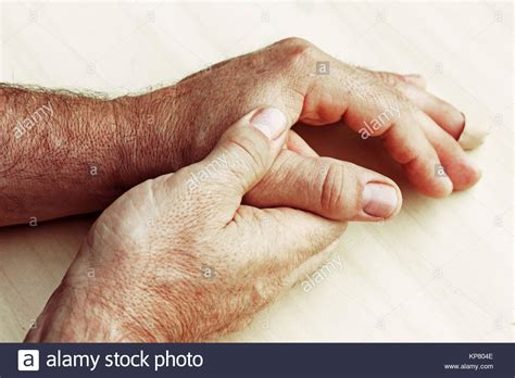 Warts Hands Stock Photos Warts Hands Stock Images Alamy