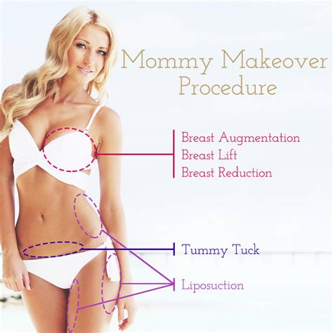Who Can Benefit From A Mommy Makeover