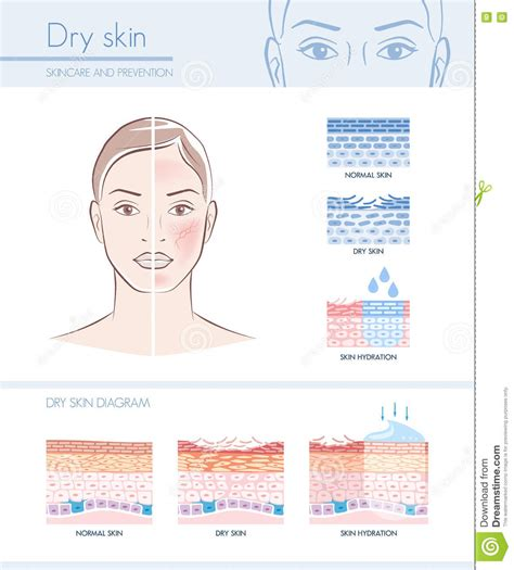 exfoliation cartoons illustrations vector stock images