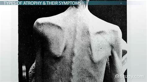 atrophy definition types symptoms video lesson