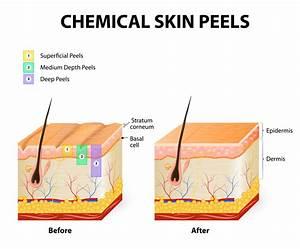 Chemical Peel Diagram