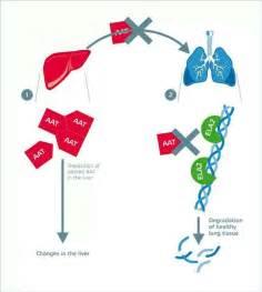 Alpha 1 Antitrypsin