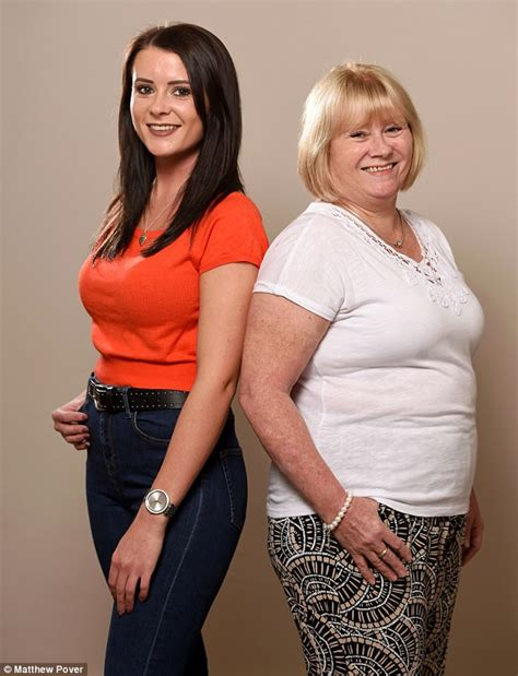 Cheshire mother and daughter undergo £10K breast swap | Daily Mail Online