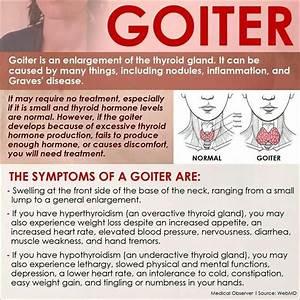 Goiter Symptoms