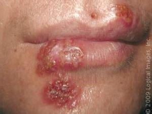 herpes nasale interno infecciones orales misapuntes