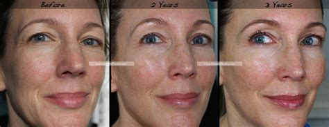 Retin-A for Wrinkles   3-Year Results   Before & After