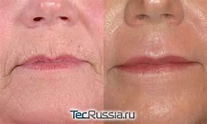 Крем для кожи вокруг глаз против морщин с коэнзимом q10 roland отзывы