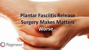 treatment for severe plantar fasciitis pain