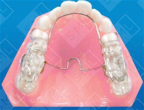 fixed twin block dental appliance twin block dental