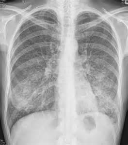 Atypical Pneumonia. Causes, symptoms, treatment Atypical Pneumonia Pneumonia