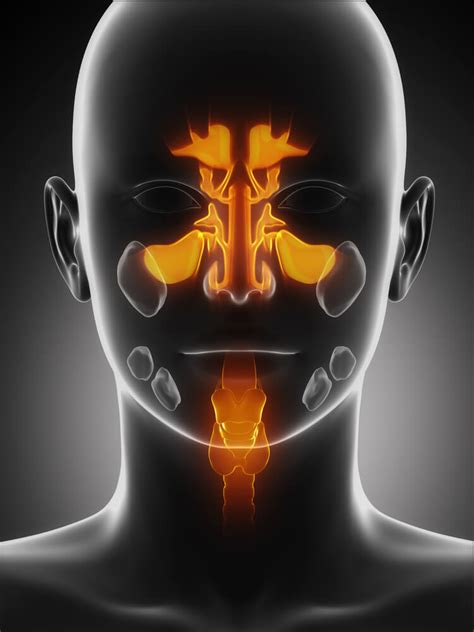 house call doctor    sinus infection
