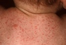 Scarlet Fever Rash - Pictures, Treatment, Contagious ...