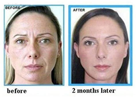 Before & After the use of Argan Oil for Face & Skin