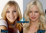 Anna Faris Before Plastic Surgery - celebrity plastic surgery