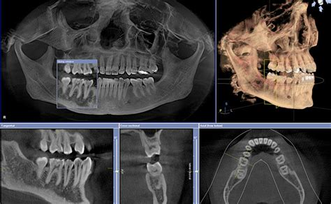 iluma ultra cone beam ct scanner dental implants oral