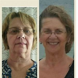 Hypothyroid in photos–Before and After | Stop The Thyroid ...